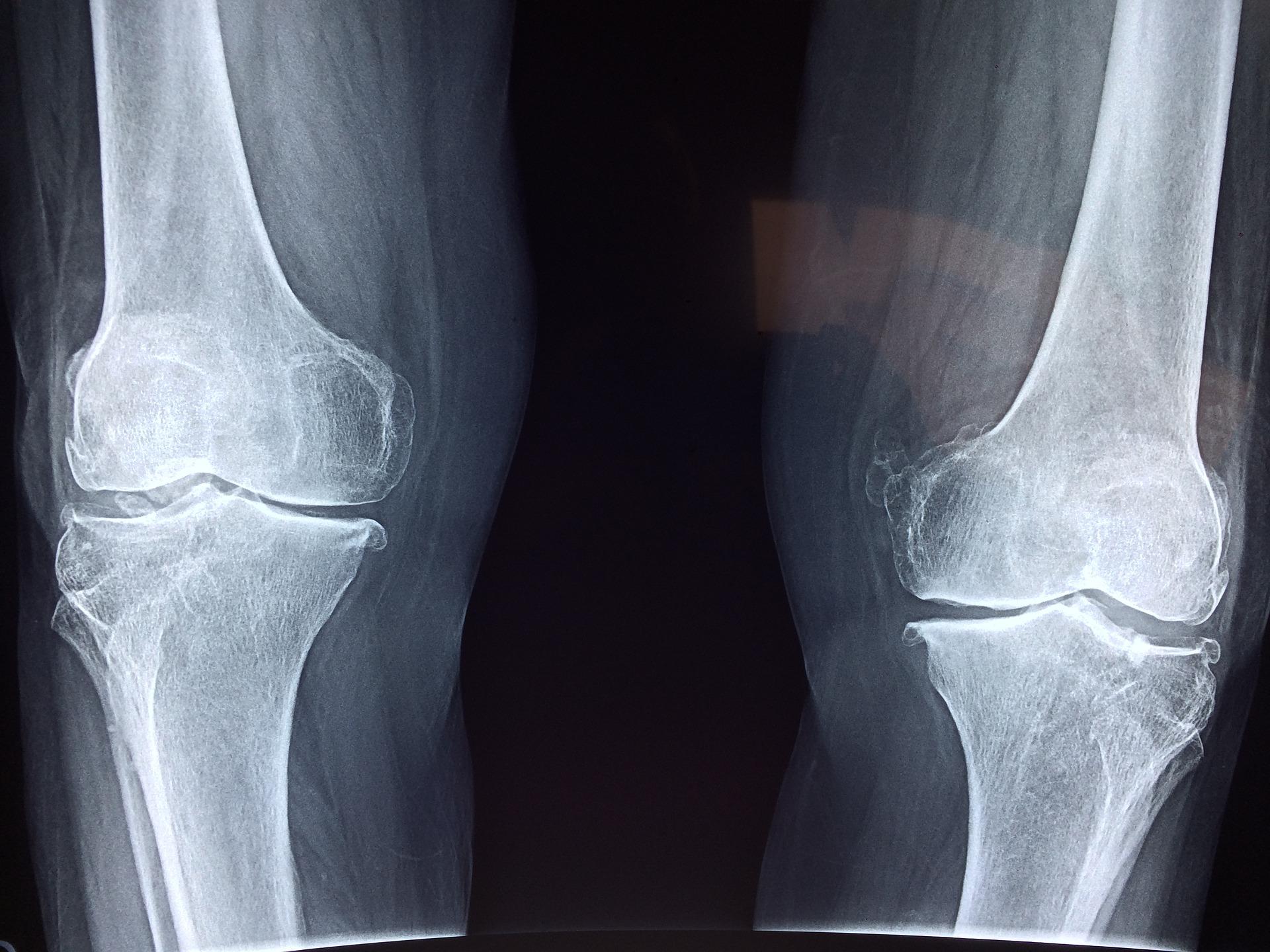 Principios de la osteopatía